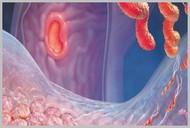 Лечение хронического гастродуоденита у детей